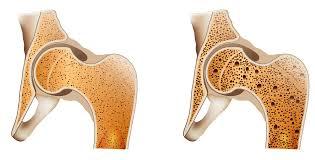Využití pupečníkové tkáně při regeneraci kostí